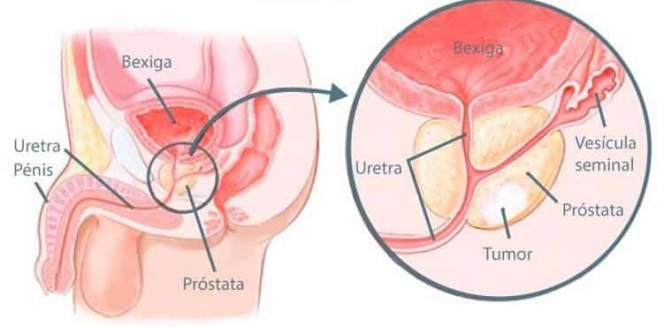 Cancro da Próstata - sinais de alerta - Vibrolandia